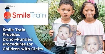 Smile Train Provides Donor Funded Procedures For Children With Clefts