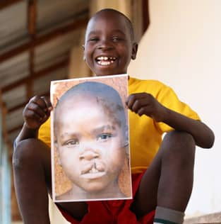 Image of a child in Tanzania helped by Smile Train